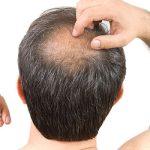 prostaquinon, alopecia e queda de cabelos