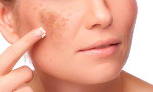 Qual o melhor protetor solar para quem tem mancha no rosto?